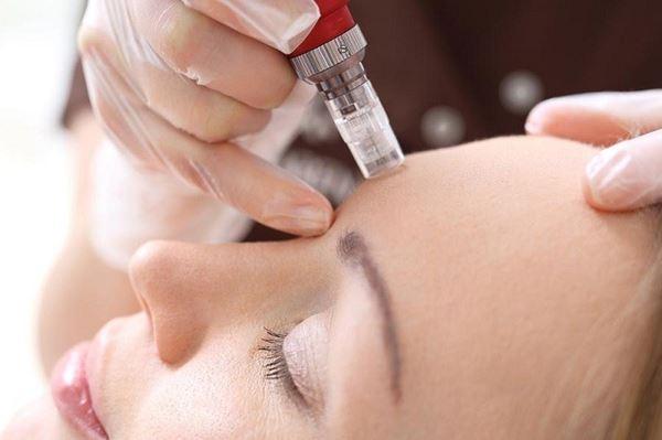دوره مراقبت پوست و میکرونیدل